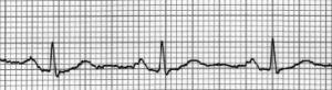 ECG - Electro Cardio Graph